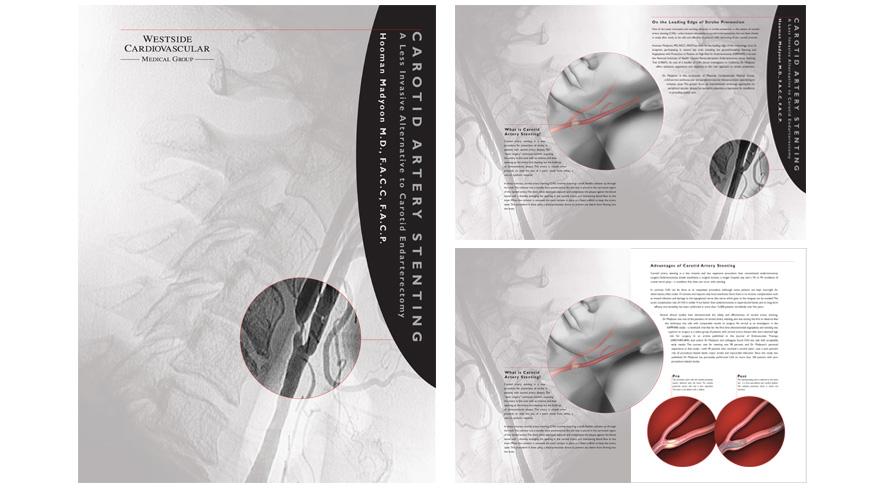 Westside Cardiology Brochure